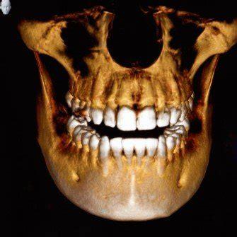 starbrite dental  rockville md