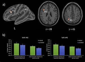 E A  Brain Regions Showing A Significant Interference