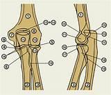 Боли в локтевом суставе после перелома