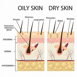 Skin Conditions Similar To Vitiligo Stock Vector