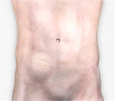 hernia after c section incisional hernia pictures