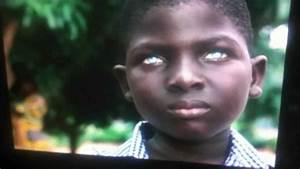 Yeux Verts Rares : jeune africain noir avec des yeux bleus tres rare youtube ~ Nature-et-papiers.com Idées de Décoration
