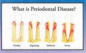 Listen to your Periodontist