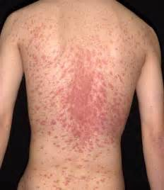 image pityriasis_rosea for term side of card Malathion Skin Lotion