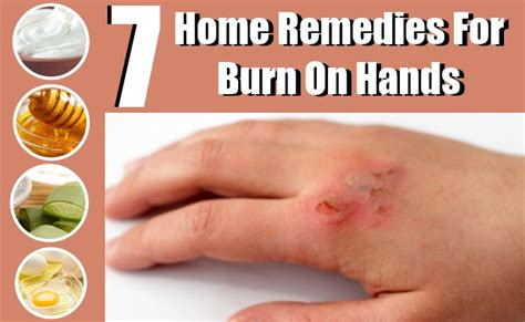 7 Effective Home Remedies For Burns On Hands Natural