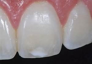 Папиллома полости рта лечение в домашних условиях