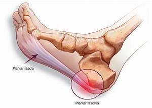 Plantar Fasciitis Treatment North Vancouver