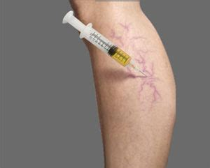 The Best Treatment For Varicose Veins And Spider Veins In. Best University In Seattle Landing Page Cost. What Does A Developmental Psychologist Do. Pbr Beer Alcohol Content Locksmith Orlando Fl. Business Plan Web Design Make Invoices Online. Personal Injury Lawyers Los Angeles California. Non Profit Association Management. Sharp Cash Register Repair House Cleaning Md. Studying Health Science Replace Lock Cylinder