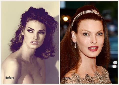 Linda Evangelista Plastic Surgery Pictures   Before and ...