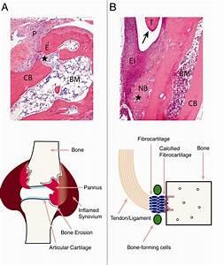 Comparison Of Bone Pathologies In Rheumatoid Arthritis  Ra