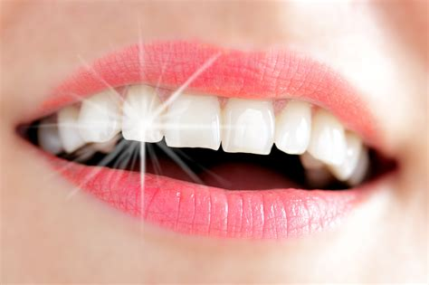 comment avoir les dents blanches avec un appareil dentaire