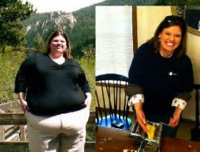 Lost 100 Pounds Before and After