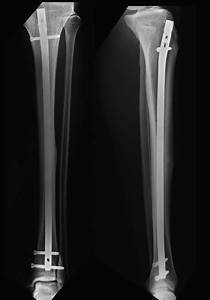 Anterior Tibial Cortex Stress Fracture In A High Demand
