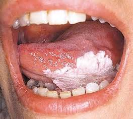 The Signs of Early Tongue Oral Cancer