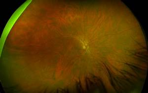 Central Serous Chorioretinopathy - Recognizing Pathology ...