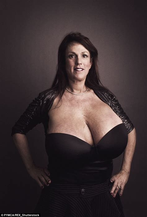 Busty Heart Susan Sykes With Her Size M Breasts Visits Botched Surgeons Daily Mail Online