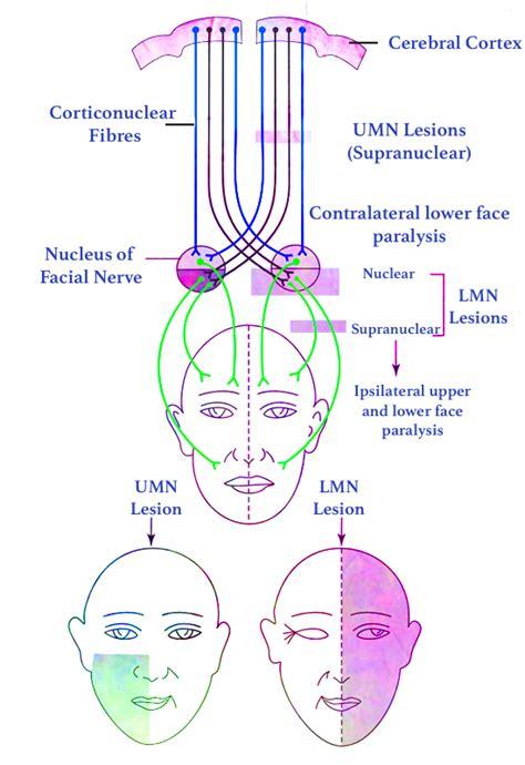 Facial Nerve Paralysis » Learn ENT Online » Facial Nerve ...