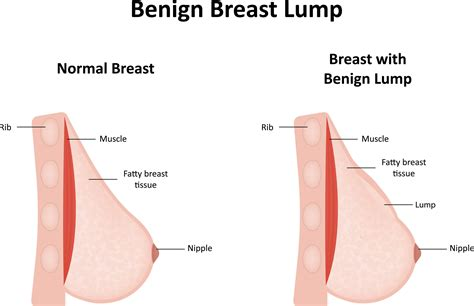 6 Warning Signs Of Breast Cancer That You Need To Know