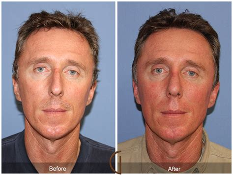 Before & After Rhinoplasty 59  Newport Beach Nose Job. Top Accelerated Bsn Programs. Triple K Fleet Services Digital Sign Displays. All College Degrees List What Is Sober Living. Tipton Rosemark Academy Personal Dust Sampler. Event Management Master Degree. Credit Score And Monitoring Auto Loan Center. Bettencourt Skin Center Unity Web Development. Cash For Title Loans Texas Canyon Raceway Az