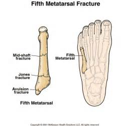 Fifth Metatarsal Bone Fracture