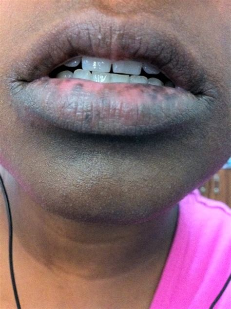 Treatment Lower Lip Discoloration