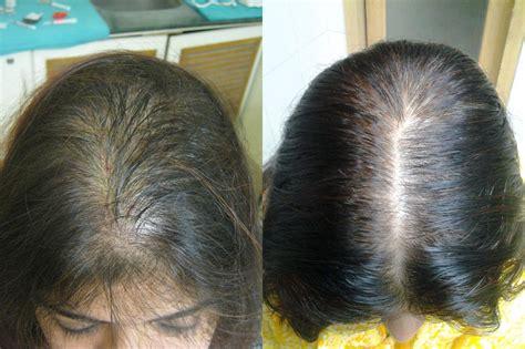 Best Options For Hair Restoration