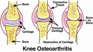 ... -surgical Ways of Treating Knee Osteoarthritis - CanadaDrugStop Blog Osteoarthritis