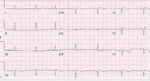 Repeat Ecg  Normal Sinus Rhythm At A Rate Of 62 Bpm With