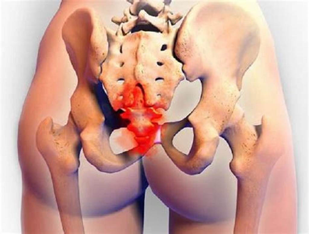 #Often #Injured #Rarely #Treated: #Tailbone #Misalignment