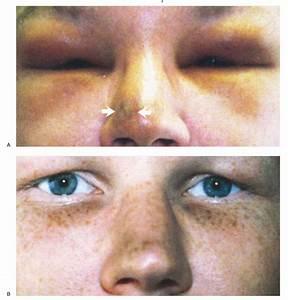 Periorbital Edema in Kaposi's Sarcoma — NEJM