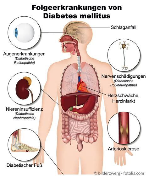 In Diabetes Mellitus Diabetes