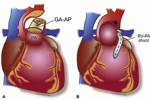 Aortic Arch Geometry After The Norwood Procedure  The