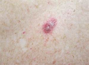 Squamous Cell Carcinoma Melbourne