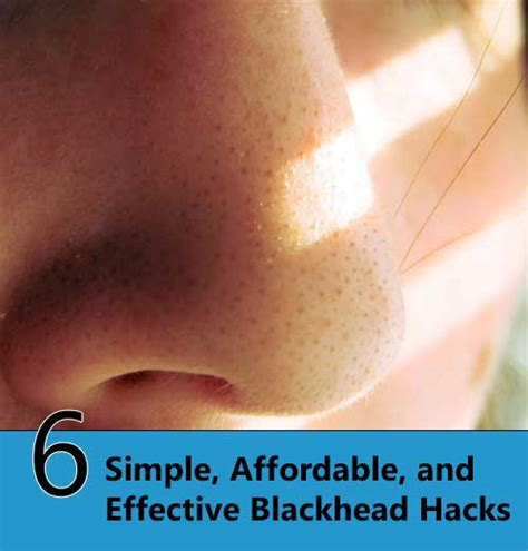 6 Simple, Affordable, And Effective Blackhead Hacks Home