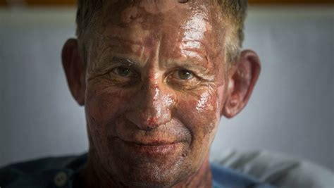Burns victim feels lucky despite birthday barbecue ...
