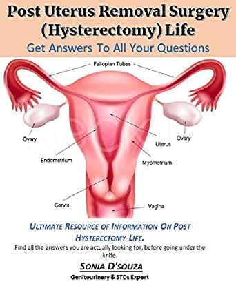 POST UTERUS REMOVAL SURGERY (HYSTERECTOMY) LIFE: A MUST ...