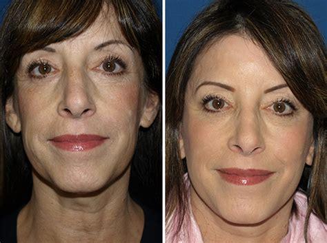 Skin, lifting, facial, machine Wholesale, facial, machine suppliers - alibaba