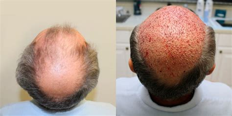 crown hair transplant cost in Fort Lauderdale Florida - Dr