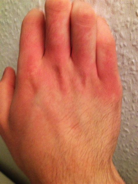 handknochen geroetetbrennen medizin hautarzt roetung