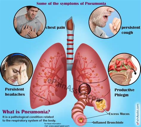 it s a cough it s pneumonia it s metastatic osteosarcoma