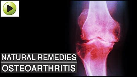 osteoarthritis pain arthritis joint natural remedies ayurvedic pains aches
