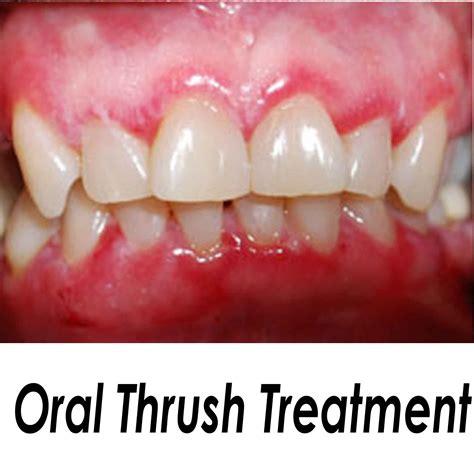 Thrush Mouth Treatment Tubezzz Porn Photos