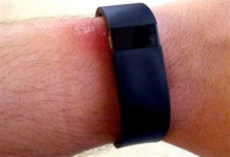 Fitbit Force 2 Demanded Following Recall  Product Reviews Net