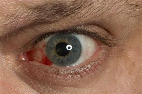 Herpes In The Eye Images Is Eye Herpes Simplex Infection Contagious