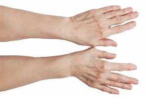 Артрит суставов пальцев рук лечение препараты