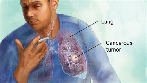 Lung Cancer  Tazablog. Kitchen Door Signs Of Stroke. Number 8 Signs. Basket Signs Of Stroke. Gendered Signs. Unequal Signs. Character Marvel Signs Of Stroke. Pets Signs Of Stroke. Asbestos Removal Signs Of Stroke