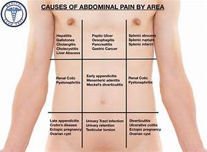The Differential Diagnosis Of Abdominal Pain By Area