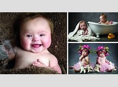 Babies with Down's Syndrome Pose For Adorable Charity