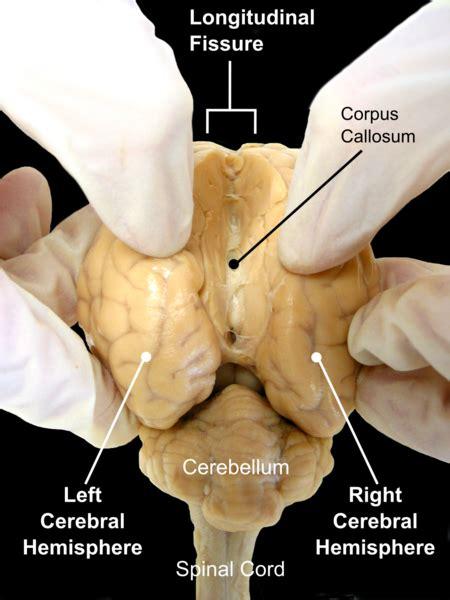 head     oddly shaped brain