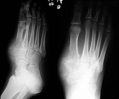 Foot Bone Tumors Chondrosarcoma Mesenchymal Orthopaedicsone Mass